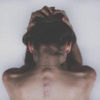 女性の円形脱毛症その原因と関係性