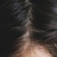 分け目が気になる女性の薄毛の対策方法